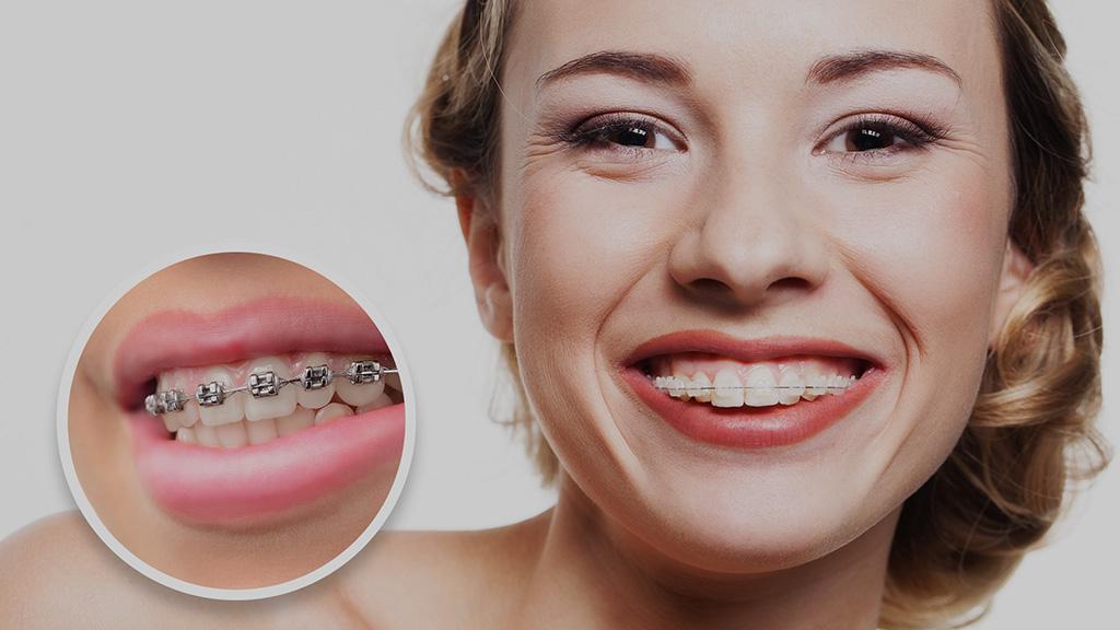 Despre aparate dentare