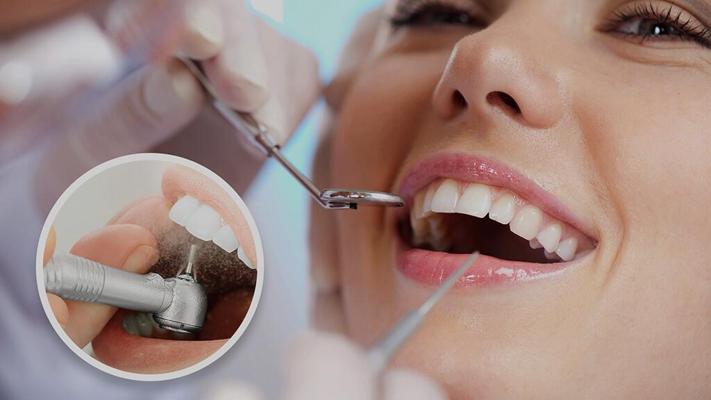 Detartrajul sau curatarea dintilor