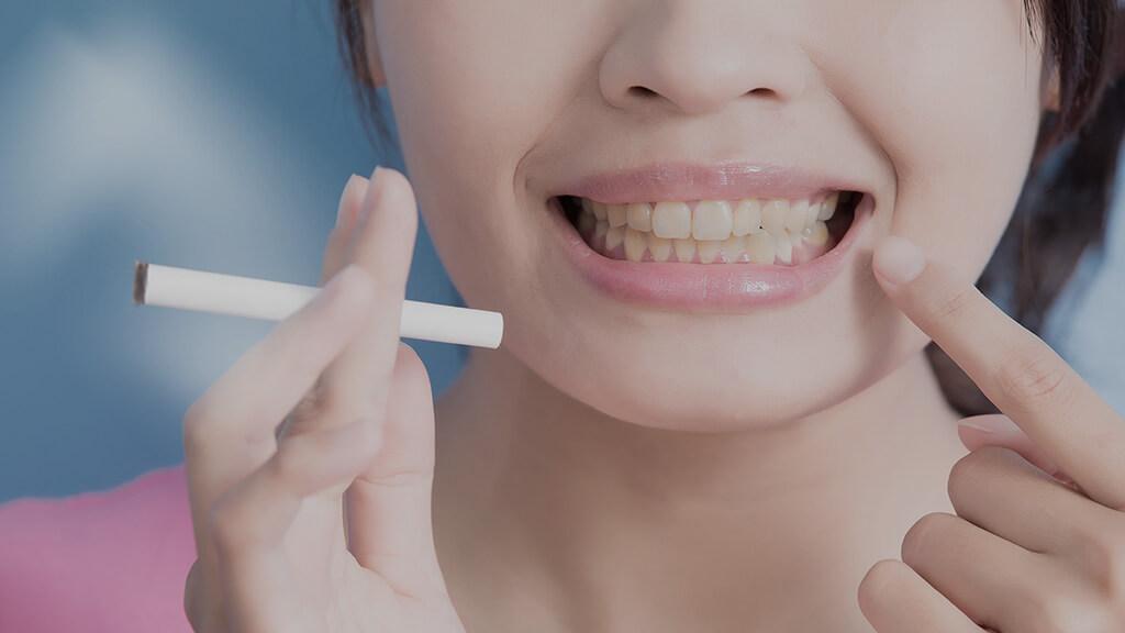 Fumatul si dintii