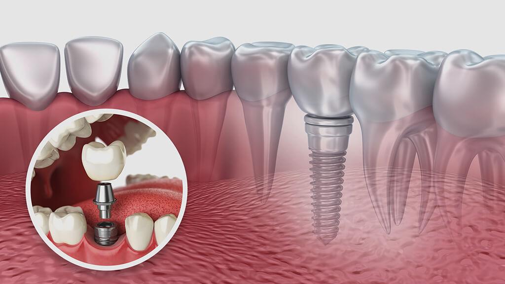 Beneficiile implanturilor dentare