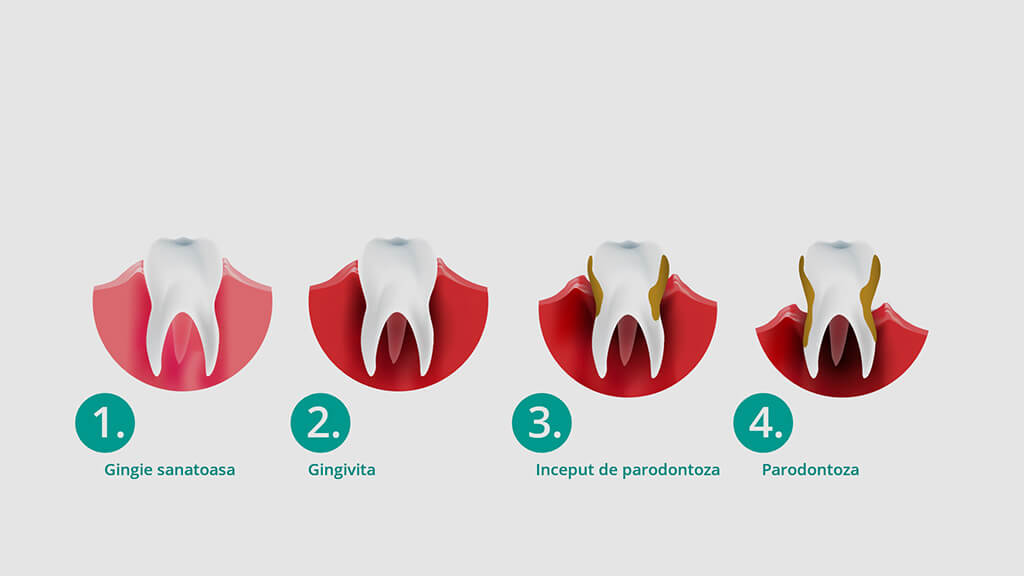 Tratamentul parodontozei
